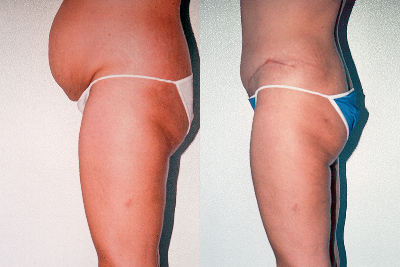 liposuction vs gastric bypass surgery
