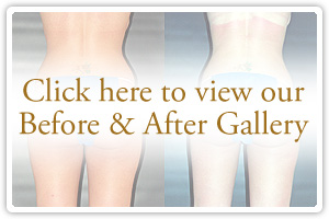 Inner Thigh Lift Before And After Photos